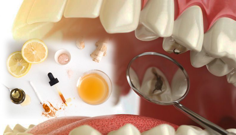 Remedios Caseros Para Eliminar La Caries Dental