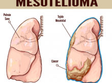 mesotelioma cancer